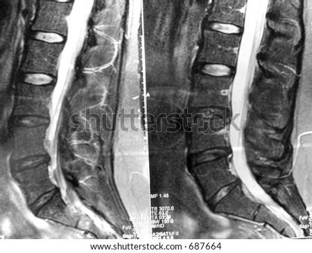 MRI back herniated disc herniation medical - stock photo
