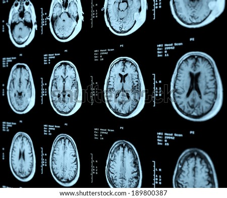 MRI Head Scan Perspective - stock photo