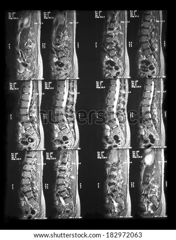 MRI LS spines of a patient who has chronic back pain with claudication:demonstrated degenerative lumbar discs with anterolisthesis,severe central and lateral canals stenosis,compression of nerve roots - stock photo