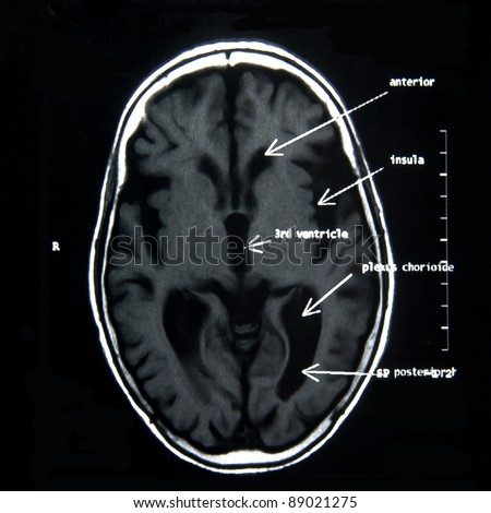 MRI of the brain with explanations - stock photo