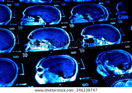 MRI scan : Human brain - stock photo