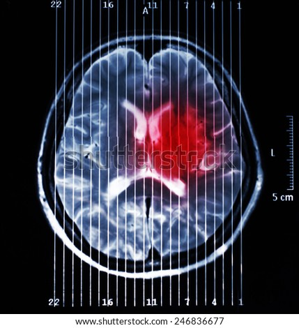 MRI scan : Human brain - stock photo
