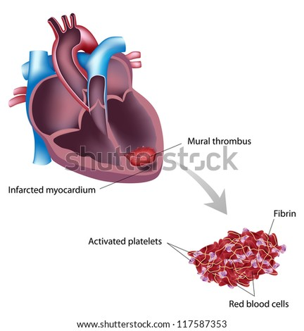 thrombus stock photos images pictures shutterstock