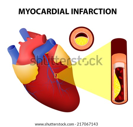 Myocardial infarction or Heart Attack - stock photo
