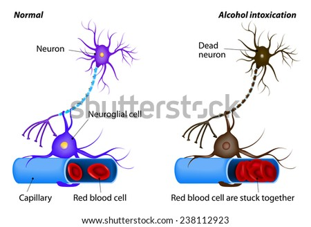 nerve damage caused by heavy drinking. Alcohol dissolves the protective layer of erythrocytes and the RBCs begin to adhere to each other. oxygen to the neuron is no longer supplied. Neuron dies - stock photo