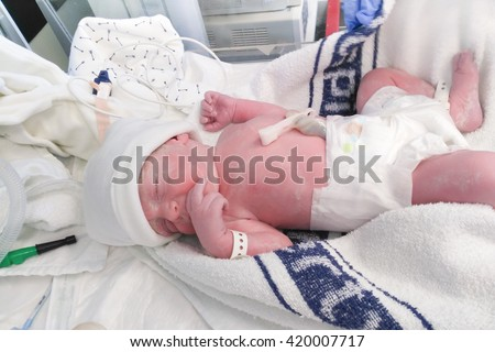 New born boy baby in diaper immediately after the caesarean section or C-section - stock photo
