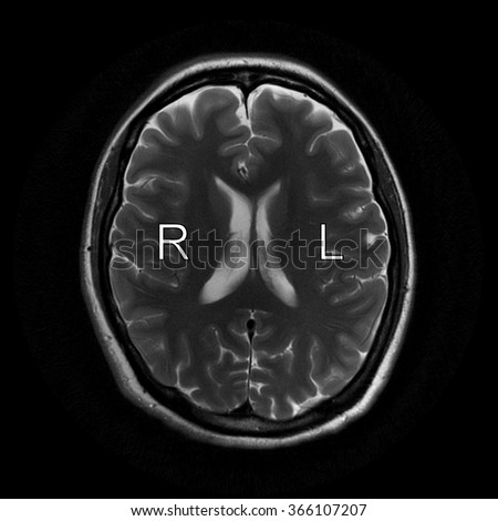 Normal human right and left hemishperes (marked as R and L) on MRI scan - stock photo