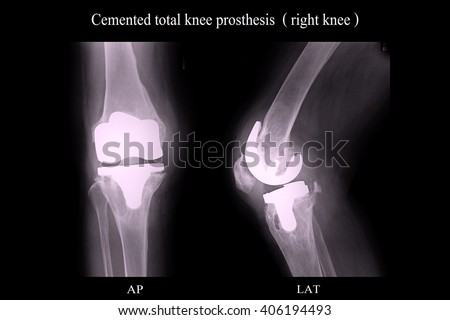 OA Knee, Cemented TKR - stock photo