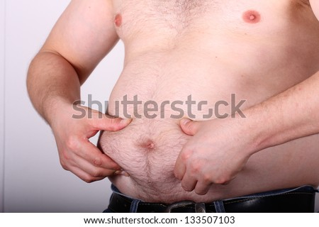 obese mans belly - stock photo