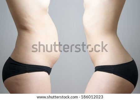 Obesity before after. Young woman's body on gray background. - stock photo
