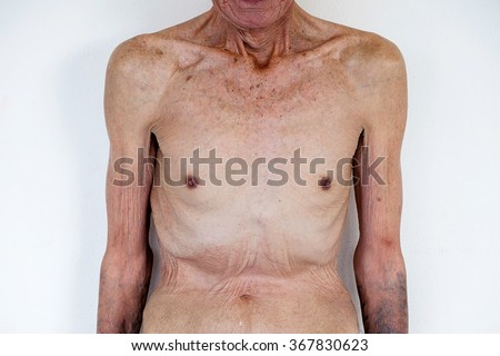 old man Skinny torso in a white background.  - stock photo