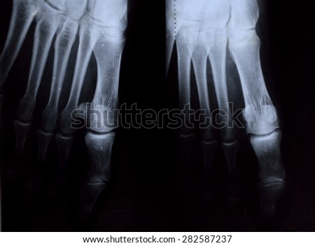 Osteoarthritis on foot. RH - stock photo