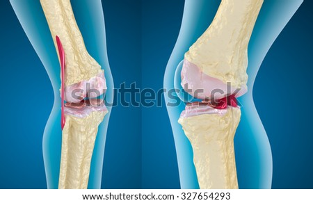 Osteoporosis of the knee joint, 3D render - stock photo