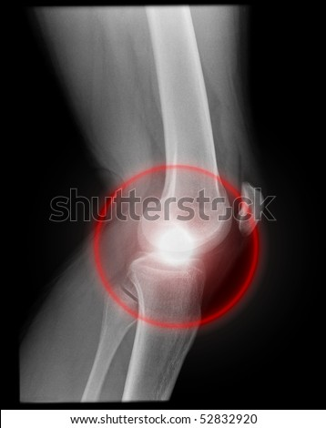 pain inside the knee joint, isolated on black background with red illumination - stock photo