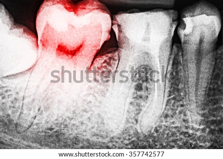 Pain Of Tooth Decay On Teeth X-Ray - stock photo
