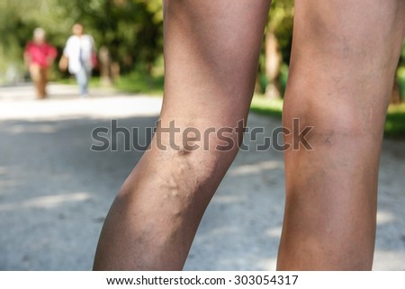 Painful varicose and spider veins on womans legs, who is active, self-helping herself. Two active seniors in the background. Vascular disease, varicose veins problems, active life concept.   - stock photo