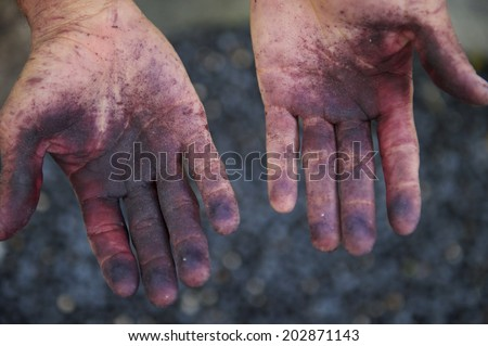 Pair of Brazilian hands stained purple from the juice of fresh acai berries juice - stock photo