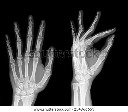 pair of hand on black background, x-ray - stock photo