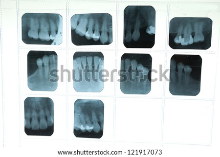 Panoramic dental X-Ray for dentist - stock photo