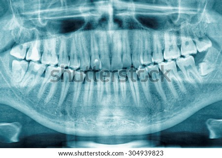 Panoramic dental X-ray, fully impacted wisdom tooth is seen - stock photo