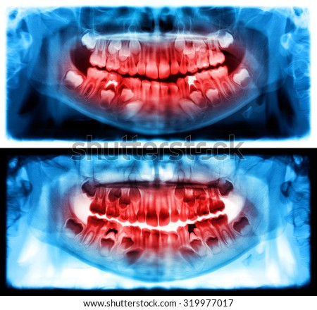 Panoramic dental x-ray of child of seven (7) years. Blue and red colors image roentgen teeth upper and lower girl skull. Two versions positive and negative shots of the digital image - stock photo