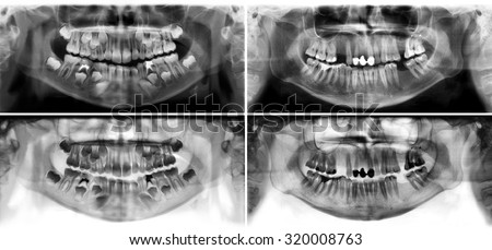 Panoramic dental x-ray tooth's of young man of 30 (thirty) and child of 7 (seven) years. Black and white image roentgen teeth upper and lower jaws of skull. Two versions positive and negative picture - stock photo