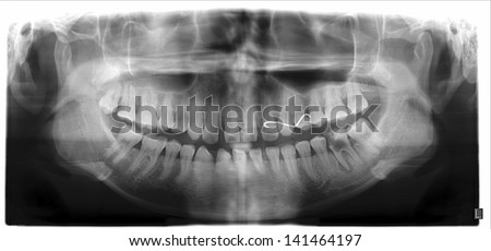 Panoramic dental X-Ray with deep dental caries tooth and big lesion - stock photo