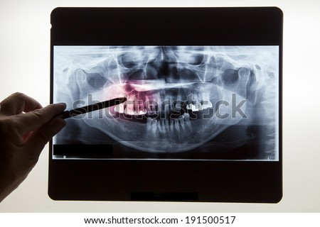 Panoramic dental X-Ray with hands point in Computer screen and film  - stock photo