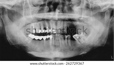 Panoramic x-ray of the mouth, both the upper and lower jaws, for oral surgeries and implantology. - stock photo