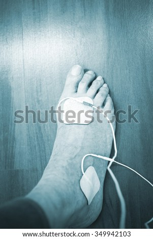 Patient foot, leg and ankle in electro physiotherapy electrical impulse stimulation rehabiliation treatment from injury in hospital clinic with electrical stimulus attached with plaster.  - stock photo