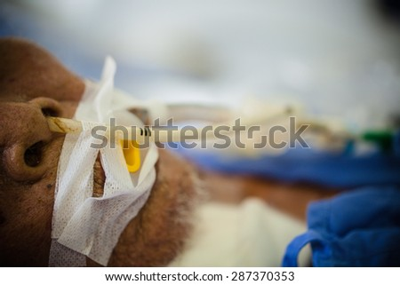 patient in the ICU. Visible Endotracheal tube of ventilator. Photos. - stock photo