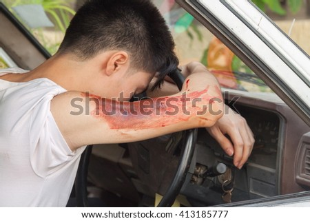 patient Injury upper arm in the car, the victim in a crashed vehicle,Wait physician assist the patient in emergency rescue situations, (select focus Wound to the arm and soft-focus background) - stock photo