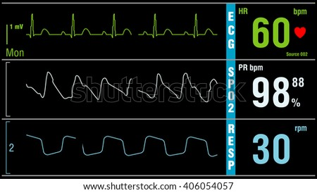 Patient monitor displays vital signs ECG electrocardiogram EKG, oxygen saturation SPO2 and respiration. Medical examination. - stock photo