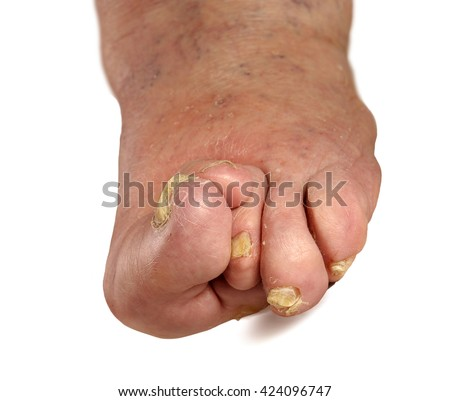 Patients feet of an old man.Inflammatory process.Gout.Erysipelas.Nail fungus.The disease of the joints and tissues caused by metabolic disorders in the body. - stock photo