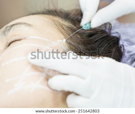 PDO Suture operation,face lifting surgery. - stock photo