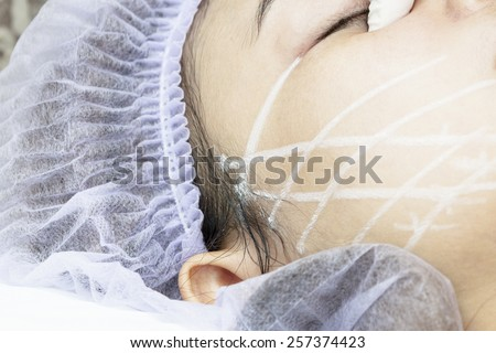 PDO Suture operation,face lifting surgery.(Series) - stock photo
