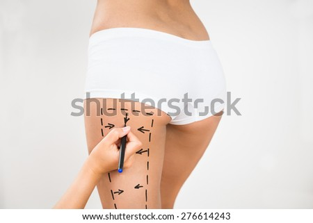 Person Hand Drawing Lines On A Woman's Thigh As Marks For Thigh Cellulite Correction - stock photo