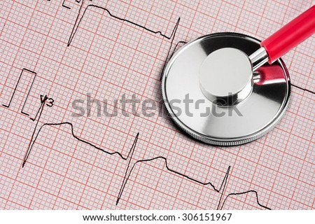 Phonendoscope lying on a cardiogram - stock photo