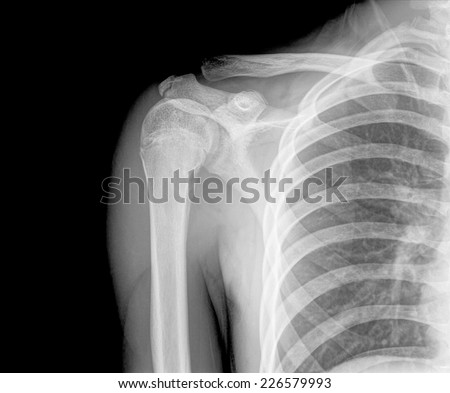 Photo of x-ray shoulder - stock photo