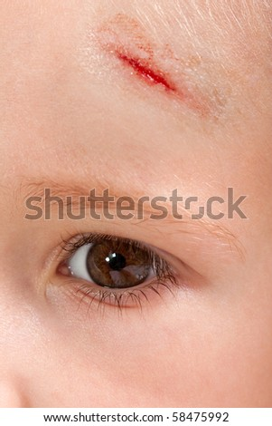 Physical injury blood wound skin human child pain - stock photo