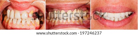 Picture of human teeth before and after dental treatment - beforeafter series. - stock photo