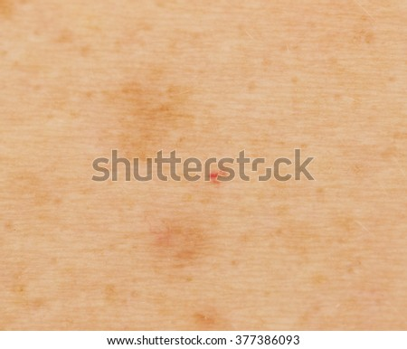 pigmented spots on the skin close-up - stock photo