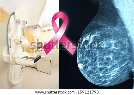 Pink ribbon for breast cancer awareness on mammogram image background - stock photo