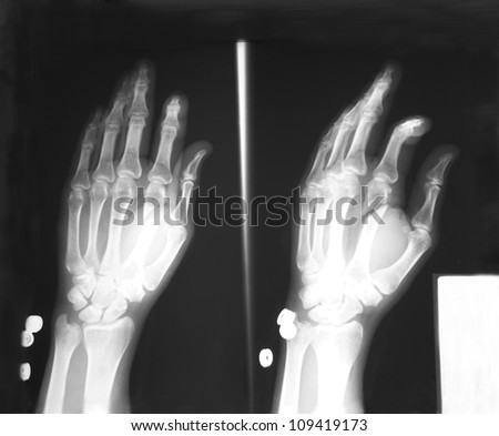 Plain film antero-posterior (AP), and oblique views of left hand: Demonstrated fracture of second metacarpal bone. - stock photo