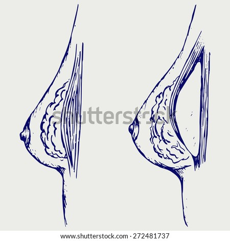 Plastic surgery. Breast implant. Doodle style. Raster version - stock photo