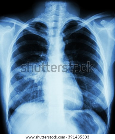 Pneumonia ( film chest x-ray show alveolar infiltrate at right middle lung ) ( image for pulmonary tuberculosis , Mers-CoV , SARS ) - stock photo