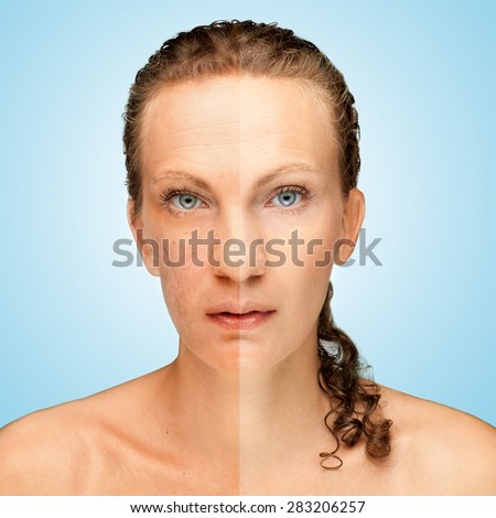 Pockmarked face / Photo retouch before and after, skin problem - stock photo