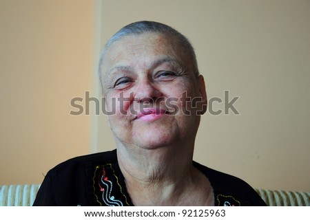 portrait of a bald woman who has chemotherapy - stock photo