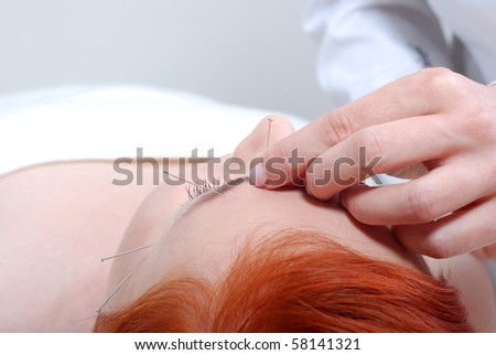 Portrait of a beautiful woman in acupuncture therapy - stock photo