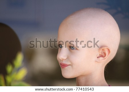 portrait of a caucasian child suffering hair loss due to chemotherapy treatment to cure cancer - stock photo